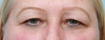 Photo of Dr.Fernando Burstein's before Blepharoplasty / Eyelid Surgery