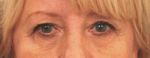 Photo of Dr. Fernando Burstein's before Blepharoplasty / Eyelid Surgery