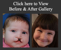 burstein pediatric plastic and reconstructive surgery