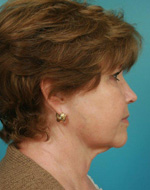 side view pre face lift procedure in atlanta