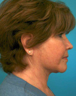 side view post face lift procedure in atlanta