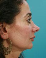 reconstructive rhinoplasty