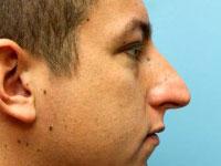 Photo of Dr. Burstein's Rhinoplasty surgery