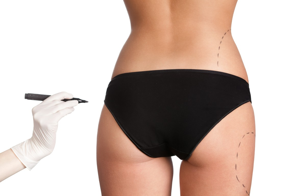 Buttock Augmentation at Atlanta Plastic Surgery, P.C. (Buttock Enhancement)