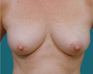 pre op tram flap breast reconstruction