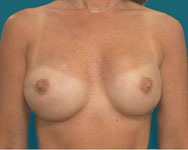 post scarless latissimus breast reconstruction