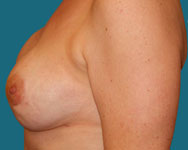 post breast implant breast recon