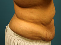 side view pre tummy tuck and breast reduction