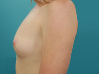 side view breast augmentation pre op