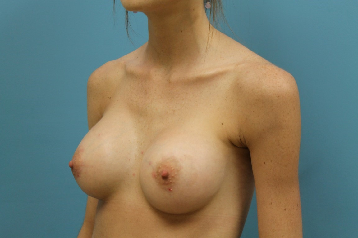 breast implant results