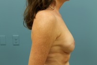 Breast Reconstruction with Tissue Expander