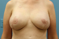 breast reconstruction surgery photos