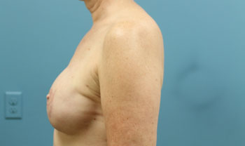 breast reconstruction in atlanta