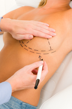 Breast Lift Surgery FAQs