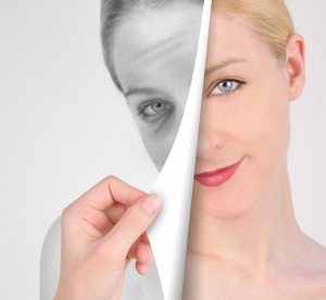 Eliminate the Signs of Aging with Eyelid Surgery