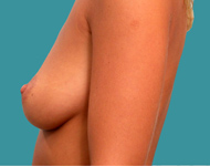 breast surgery atlanta