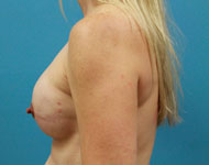 Bilateral Nipple sparing mastectomy with tissue expander reconstruction