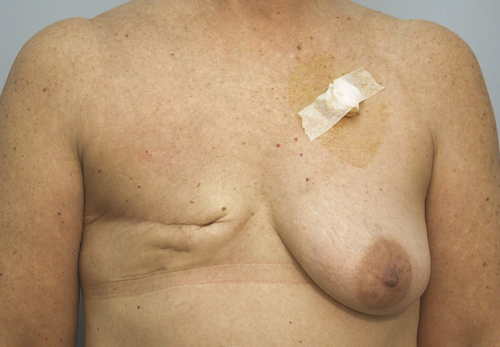 Free Tram Breast Reconstruction