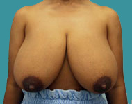 Breast Reduction: Reduction Mammaplasty