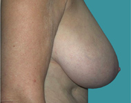 Beegle Breast Reduction Atlanta GA