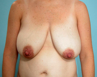 breast reduction patient
