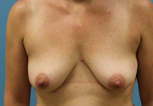 Nipple Sparing Mastectomy