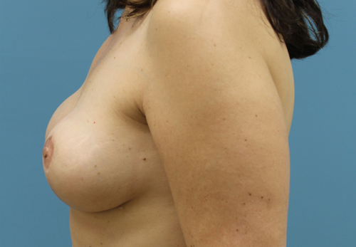 Skin Sparing Mastectomy Results Photos