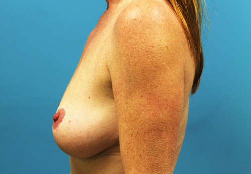 breast lift mastopexy