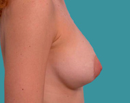 breast lift mastopexy and augmentation