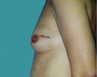 tram flap breast reconstruction