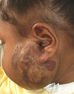 Photo of birth mark removal by Dr. Fernando Burstein