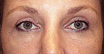 Photo of Dr. Fernando Burstein's after Blepharoplasty / Eyelid Surgery