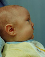 profile view of cleft palate/ lip patients