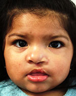 Cleft Lip & Cleft Palate Surgery