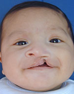 cleft nasal reconstruction and lip revision