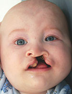 cleft nasal reconstruction and lip revision photos