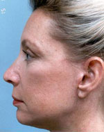 Photo of Dr. Burstein's facelift procedure