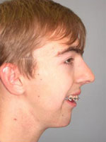 Photo of Dr. Burstein's mandibular advancement surgery