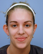 Photo of Dr. Burstein's Before Otoplasty / Ear Surgery