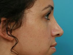 Photo of Dr. Burstein's Rhinoplasty surgery