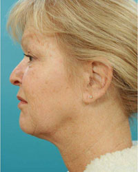 post ulthera non surgical facelift