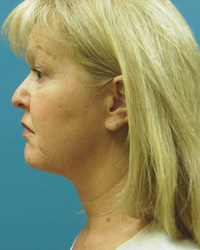 fernando burstein patient post ulthera non surgical facelift
