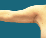 dr elliotts arm lift patient post surgery