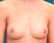 elliott breast augmentation