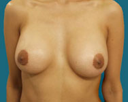 post surgery breast aug