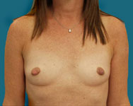 before breast augmentation