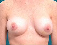 post breast augmentation and enhancement