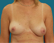before breast surgery