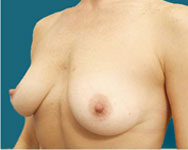 pre breast surgery