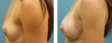 breast implants in atlanta ga